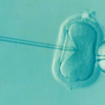【KLC通院ブログ】顕微授精or体外受精?40代で初の完全自然周期で採卵した卵子の質は?